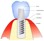 Implantatgetragener-Zahners