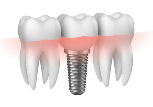 Zanimplantate / Detailansicht Zahnersatz fair dent