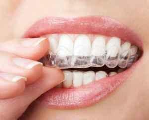 Zahnschiene Kosten - Preisvergleich bei flair-dent