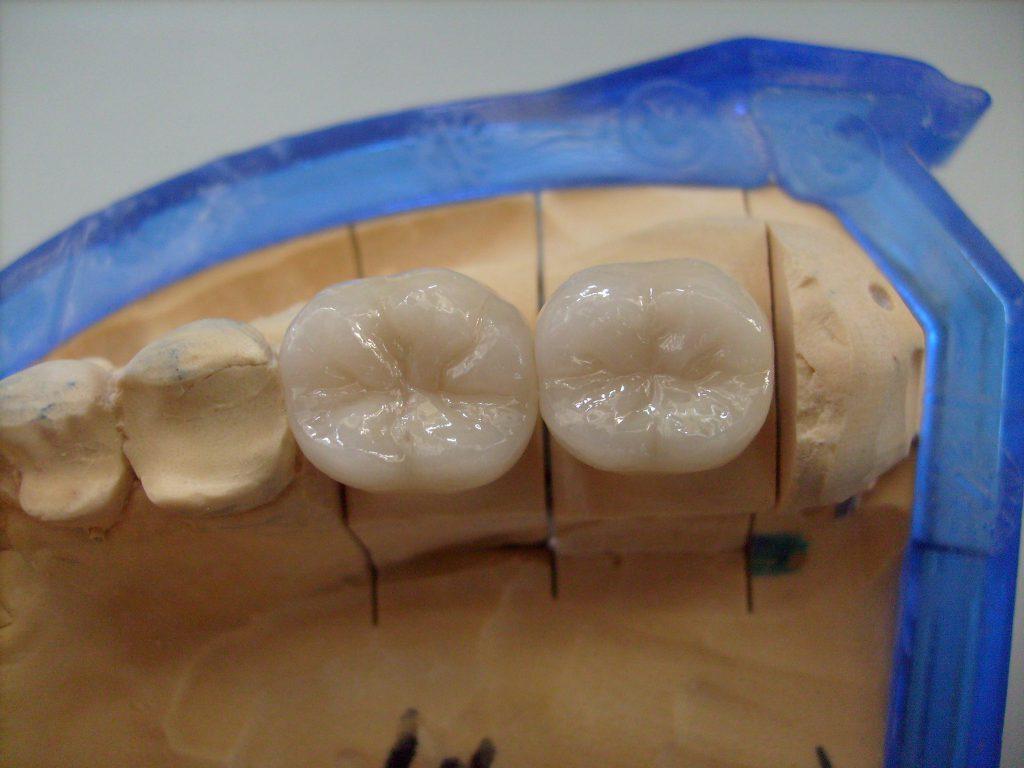 Das Ergebnis: eine passgenaue Zahnkrone